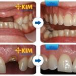 Mất răng hoặc mất nhiều răng có cách nào để phục hình răng hiệu quả?